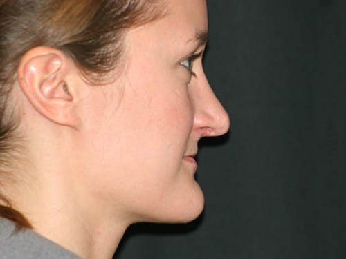 Rhinoplasty 01 After - 2