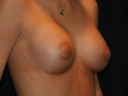 Breast Augmentation 01 After - 2