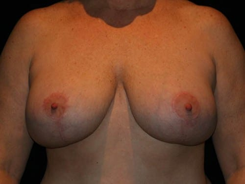 Breast Lift 01 After