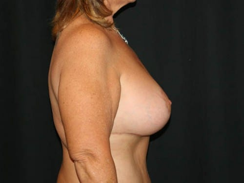 Breast Augmentation 03 After - 2
