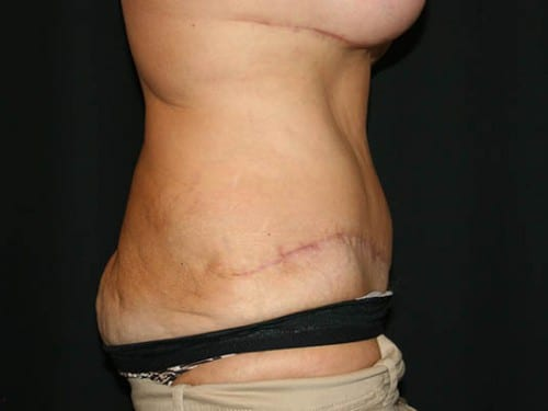 Tummy Tuck 01 After - 2