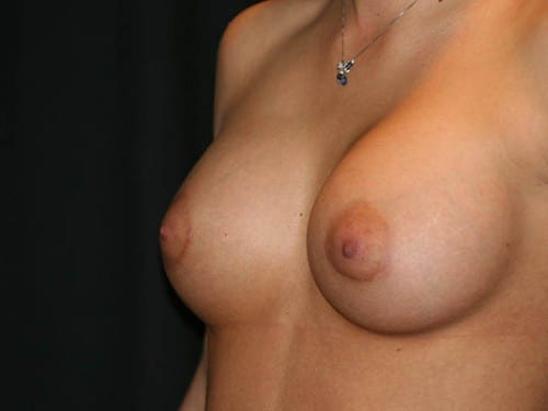 Breast Augmentation 01 After - 3