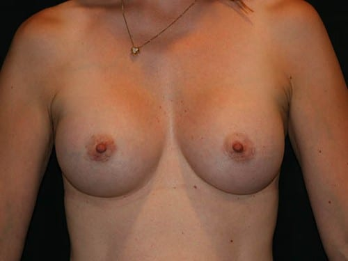 Breast Augmentation 02 After