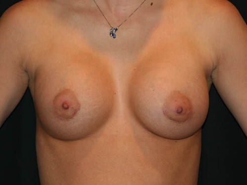 Breast Augmentation 01 After