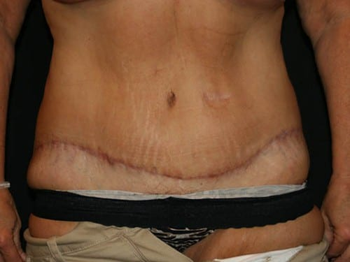 Tummy Tuck 01 After