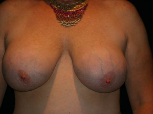Breast Lift 01 Before