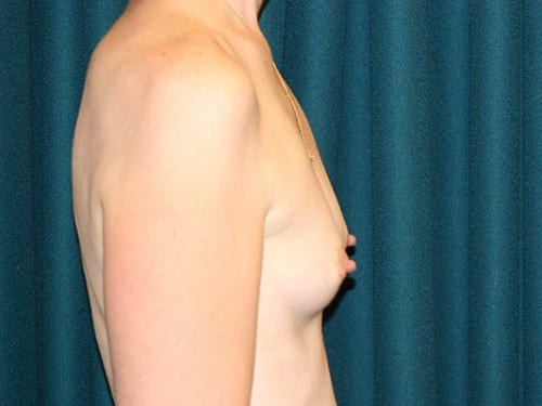 Breast Augmentation 02 Before - 2