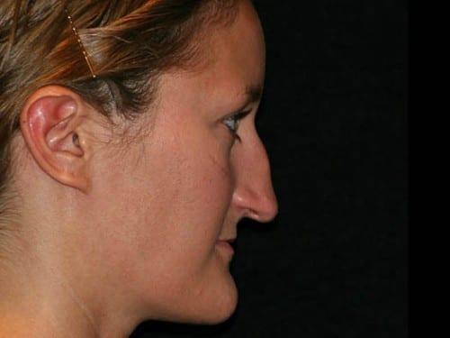 Rhinoplasty 01 Before - 2