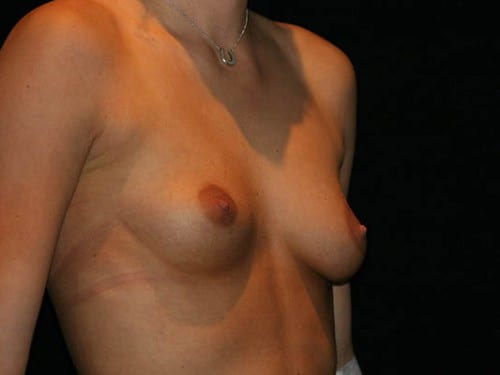 Breast Augmentation 01 Before - 2