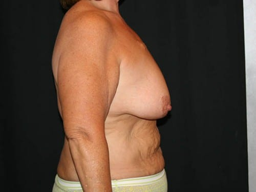 Breast Augmentation 03 Before - 2