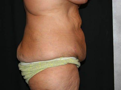Tummy Tuck 01 Before - 2