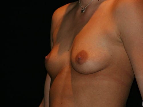 Breast Augmentation 01 Before - 3