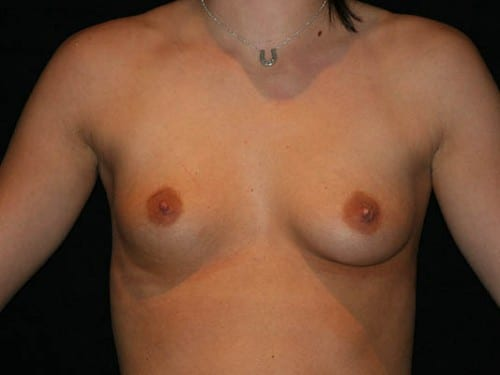 Breast Augmentation 01 Before