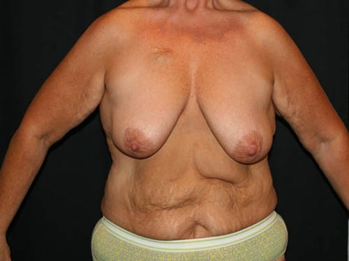 Breast Augmentation 03 Before