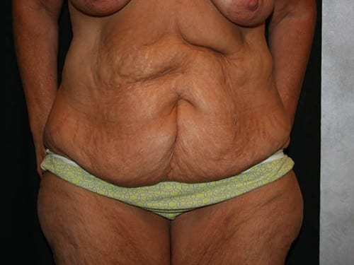 Tummy Tuck 01 Before