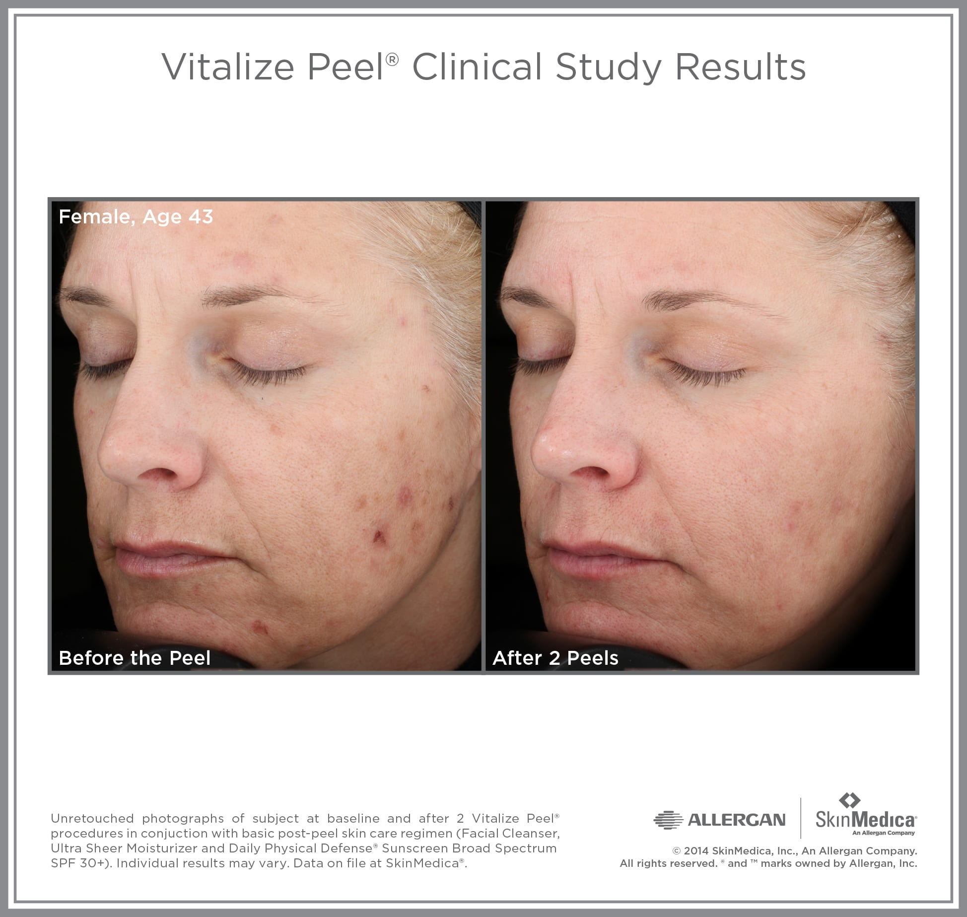 Vit_Peel_CS_Female_Age43