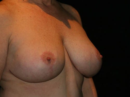 Breast Lift 01 After - 2