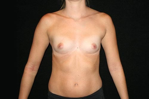 Breast Augmentation 05 Before