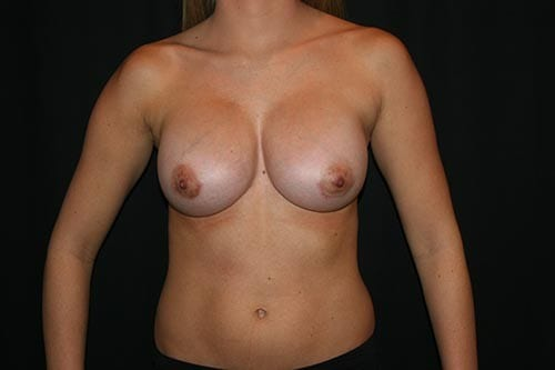 Breast Augmentation 05 After