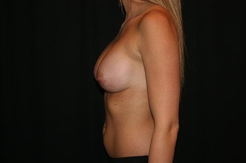 Breast Augmentation 05 After - 2