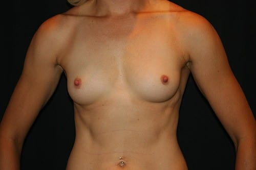 Breast Augmentation 04 Before