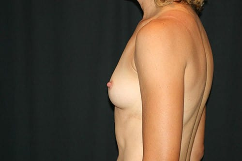 Breast Augmentation 04 Before - 2