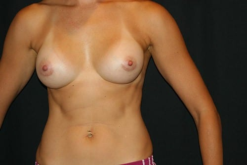 Breast Augmentation 04 After