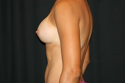 Breast Augmentation 04 After - 2