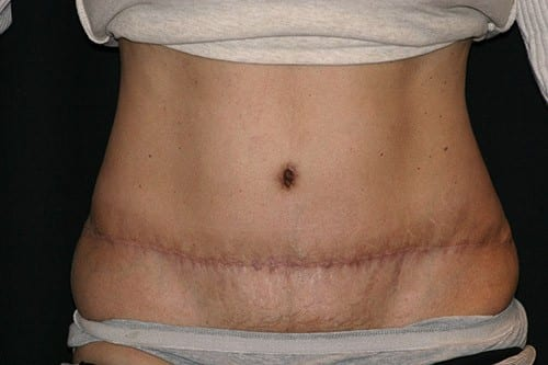 Tummy Tuck 02 After