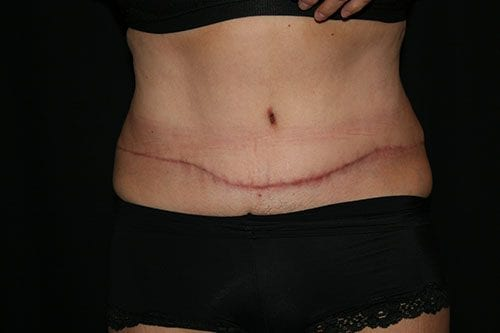 Tummy Tuck 03 After