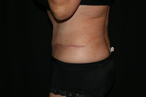 Tummy Tuck 03 After - 2