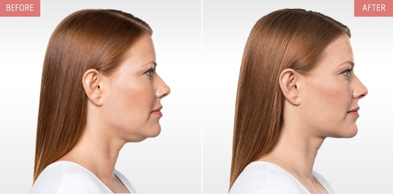 Kybella Treatment Before and After Results