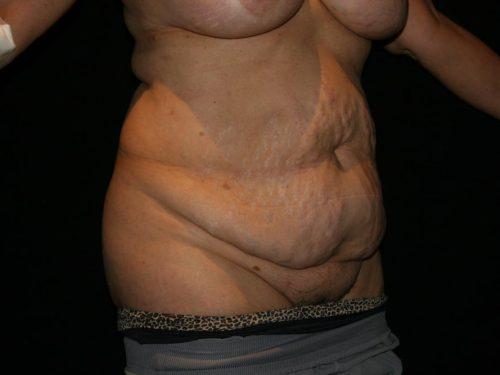 Tummy Tuck 04 Before - 2