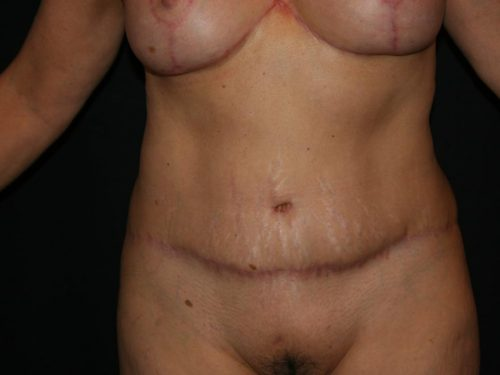 Tummy Tuck 04 After