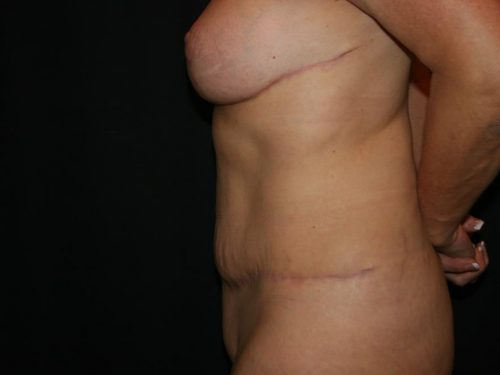 Tummy Tuck 04 After - 4