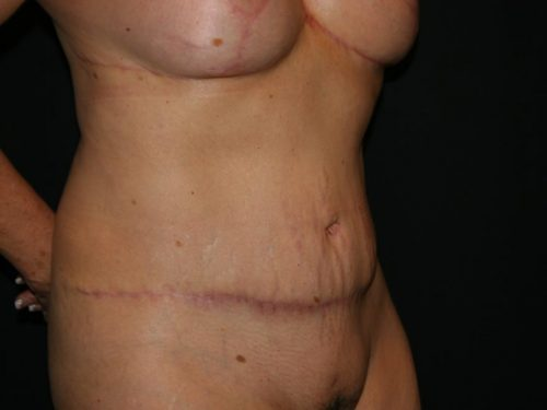 Tummy Tuck 04 After - 2
