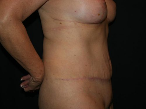 Tummy Tuck 04 After - 3