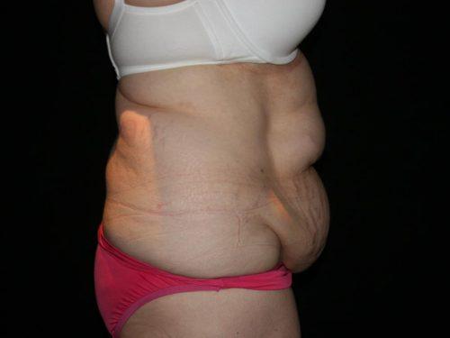 Tummy Tuck 05 Before - 3