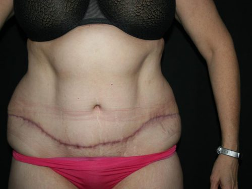 Tummy Tuck 05 After