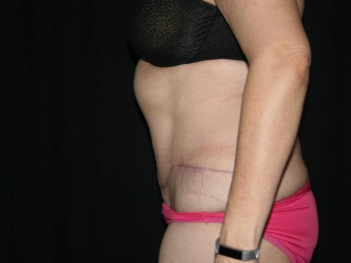 Tummy Tuck 05 After - 2
