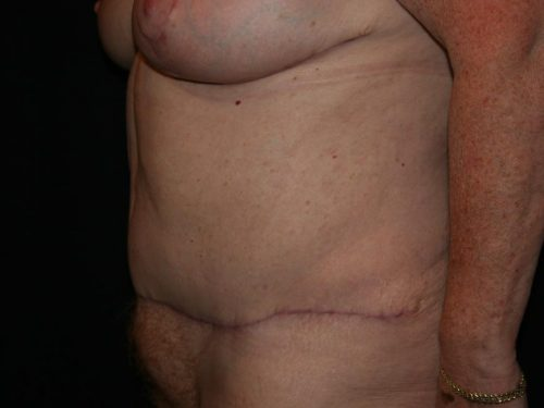Tummy Tuck 06 After - 3
