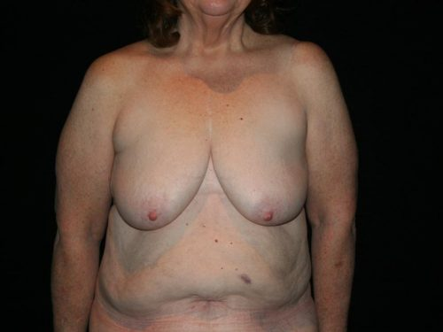 Breast Lift 03 Before