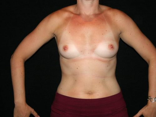 Breast Augmentation 06 Before