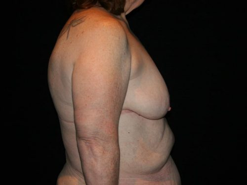 Breast Lift 03 Before - 3