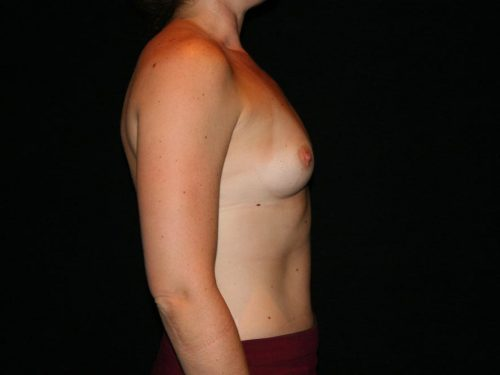 Breast Augmentation 06 Before - 2