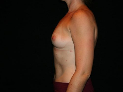 Breast Augmentation 06 Before - 3