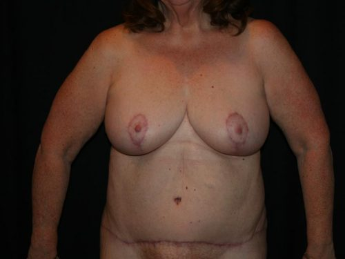 Breast Lift 03 After