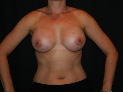 Breast Augmentation 06 After