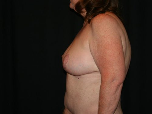 Breast Lift 03 Before - 2