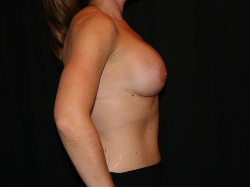 Breast Augmentation 06 After - 2